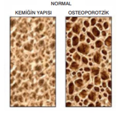 Kalsiyum ve Osteoporoz İlişkisi - Kemik Yapısı