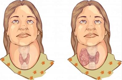 Guatrojenik Besinler Tiroid Bezine Nasıl Etki Eder?